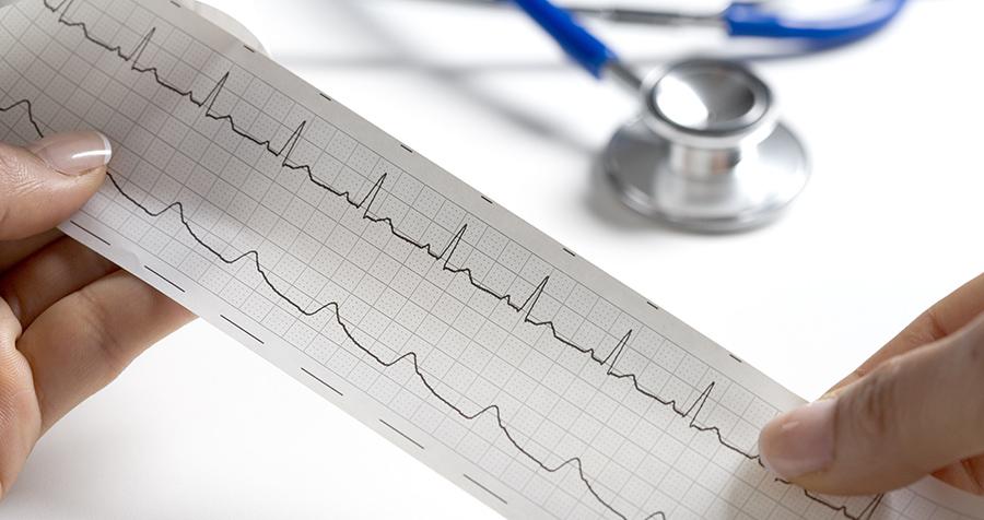 Händer som håller i EKG, stetoskop